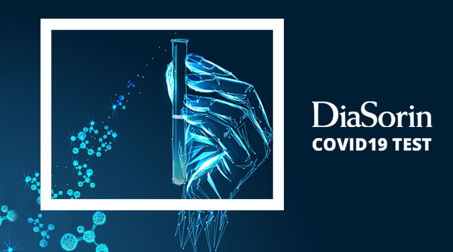 Diasorin - test covid19